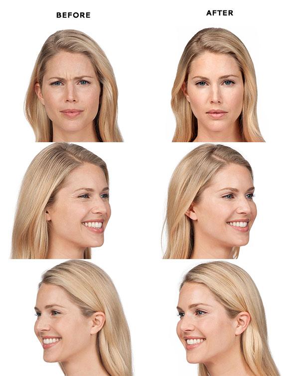Botox in Bali   Botox Treatments   Cocoon Medical Spa