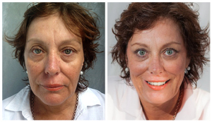 Before After - 3D Rejuvenation package