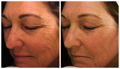 Before After - Laser for skin pigmentation After 1 Fractional treatment