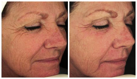 Before After - Laser for skin wrinkles - After 1 fractional laser 2 treatment