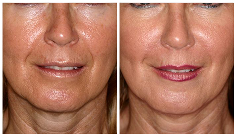 Before After - Fillers - Skin perfect package