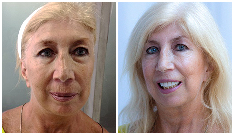 Before After - Naked Skin Package - Micro PRP Dermapen LED