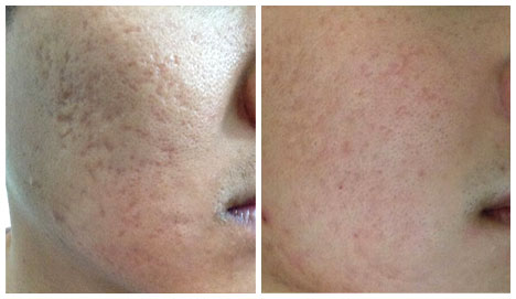 Before After 2 PRP Sessions