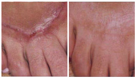 Before After - Laser for skin scars - fractional laser 2