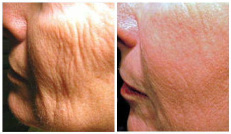 Before After - fractional laser