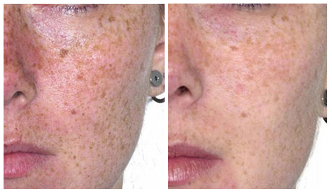 Before After - Laser for skin pigmentation - fractional laser