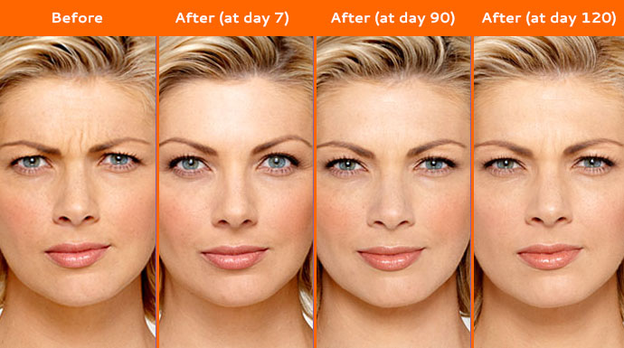 Before After - Botox in Bali