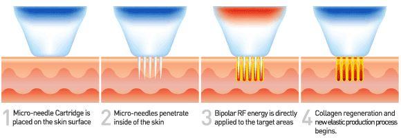 RF-Microneedling