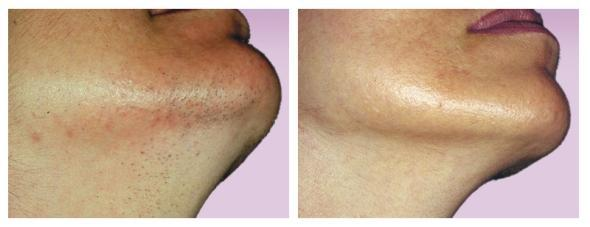 Permanent Laser Hair Removal Cocoon