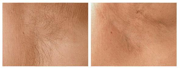 permanent-laser-hair-removal-before-after2