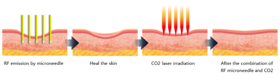 PRP Combined with RF Microneedling - Interview with Dr