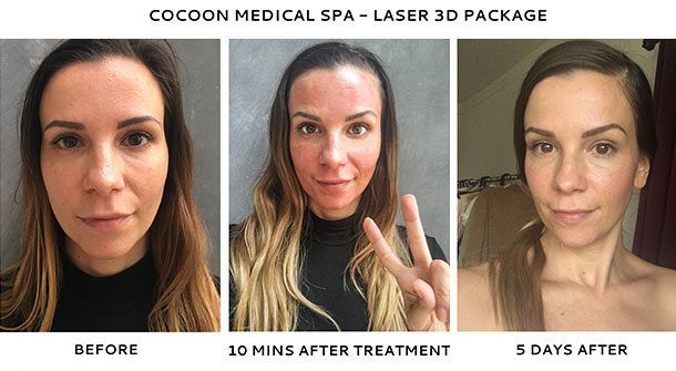 resurfacing photos Laser facial