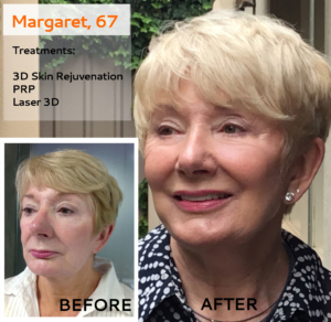 Beauty of the Month: Margaret