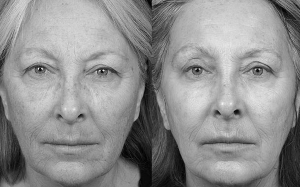 The Benefits Of Laser Skin Resurfacing With Co2 Fractional Laser Cocoon